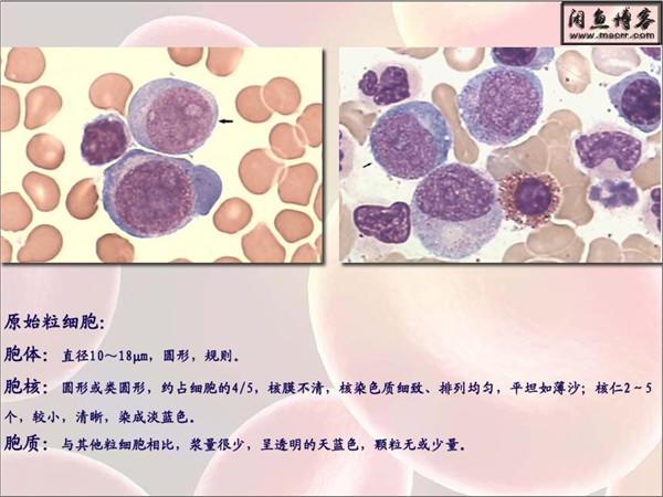 临床血液学检验_实验考试复习(图册)